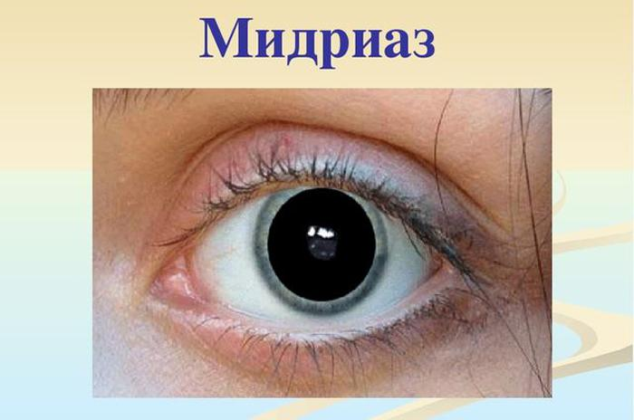 Мидриаз глаза симптомы