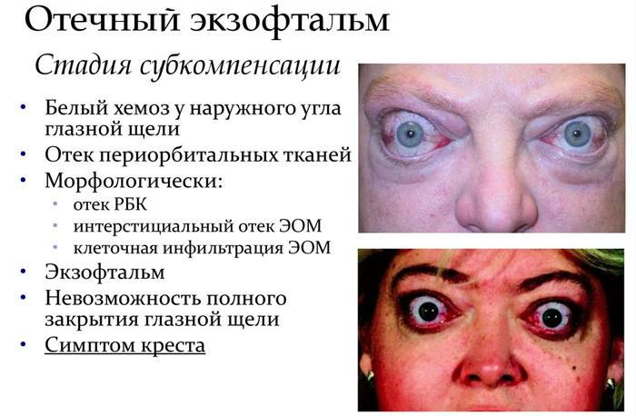Симптоматика отечного экзофтальма