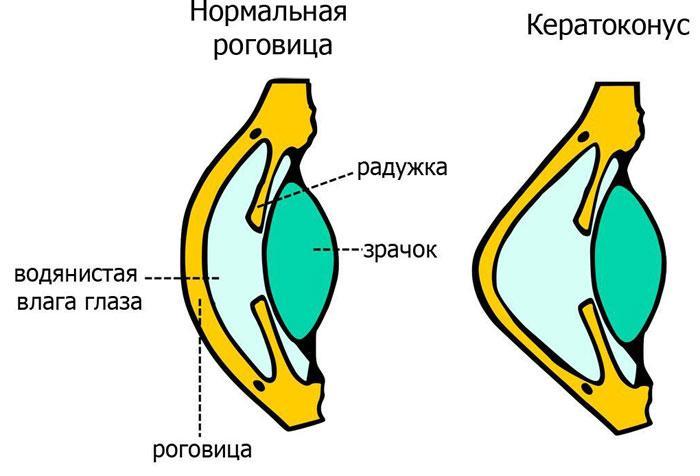 Признаки кератоконуса