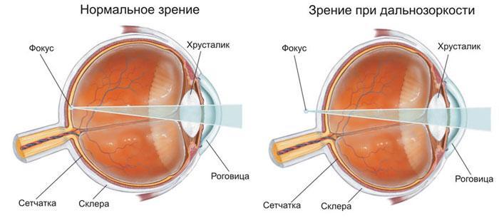 Признаки дальнозоркости (гиперметропии)