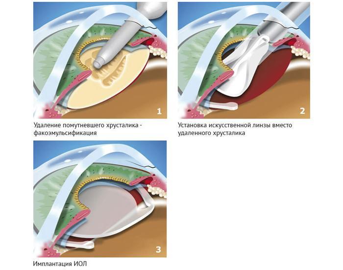 Как проводится факоэмульсификация