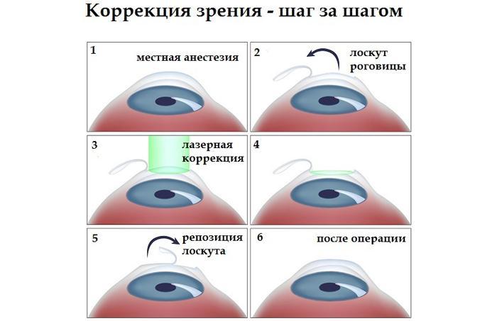 Принцип лазерной коррекции зрения