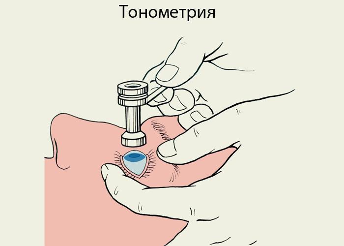 Как делают тонометрию