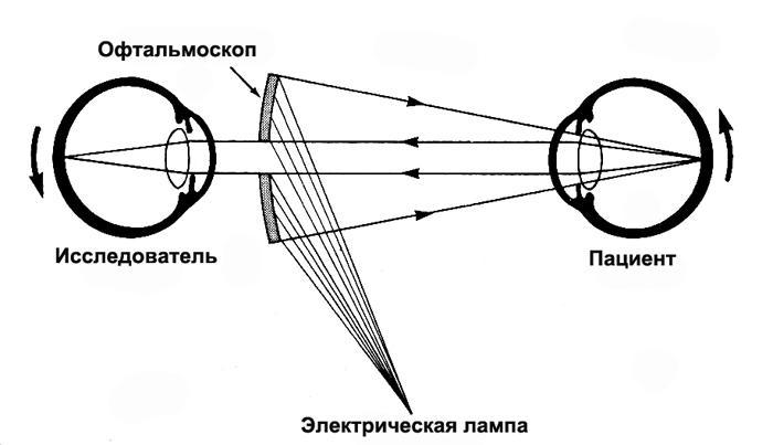 Принцип офтальмоскопии