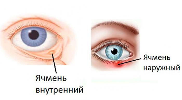 Писяк под глазом