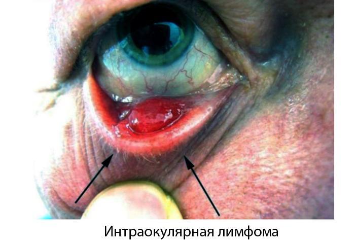 Интраокулярная лимфома глаза