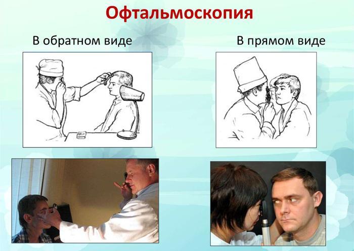 Прямая и непрямая офтальмоскопия