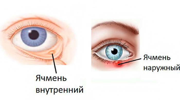 Симптомы внутреннего и наружного ячменя