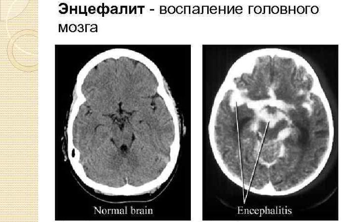 Что такое энцефалит