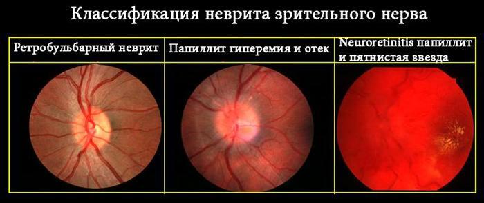 Виды неврита зрительного нерва