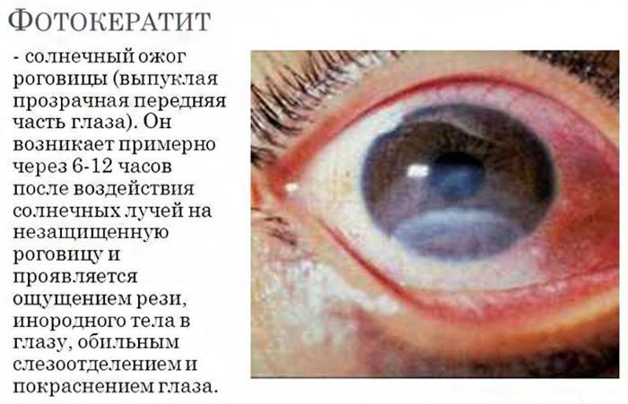 Симптомы фотокератита