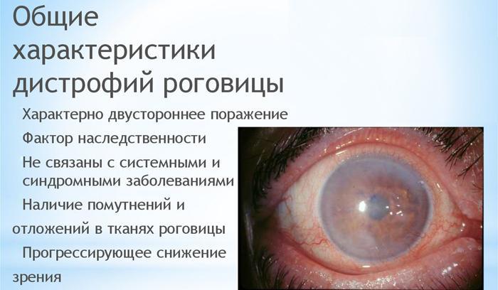 Симптомы дистрофии роговицы