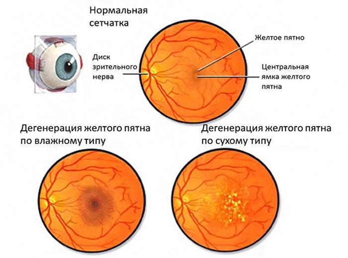Виды макулодистрофии