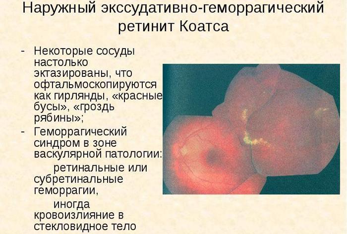 ретинит Коатса