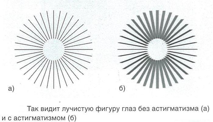 Симптомы астигматизма