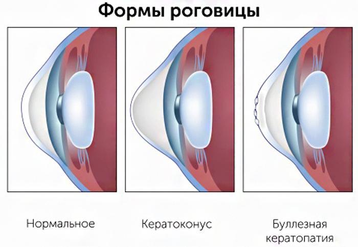 Буллёзная кератопатия