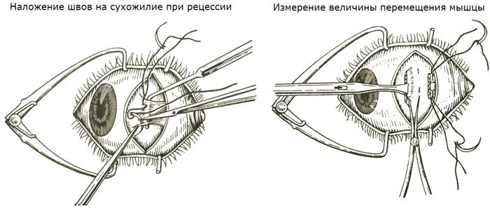 Рецессия мышцы глаза