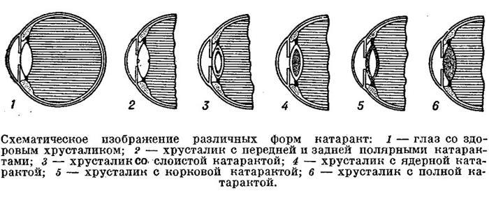 Формы врождённой катаракты