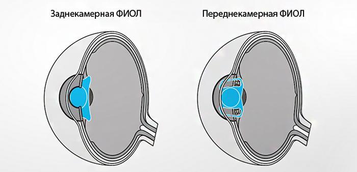 Заднекамерная и переднекамерная факичная линза