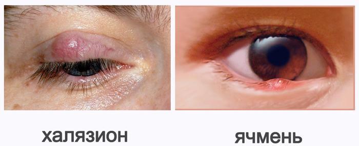 Симптомы халязиона, отличие от ячменя