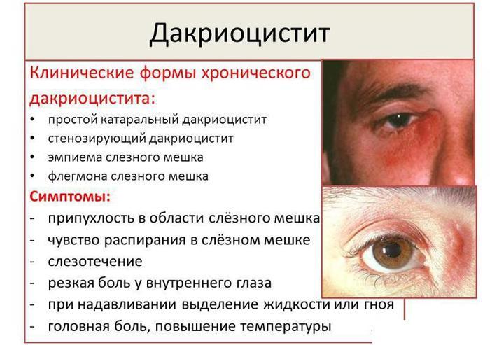 Симптомы дакриоцистита
