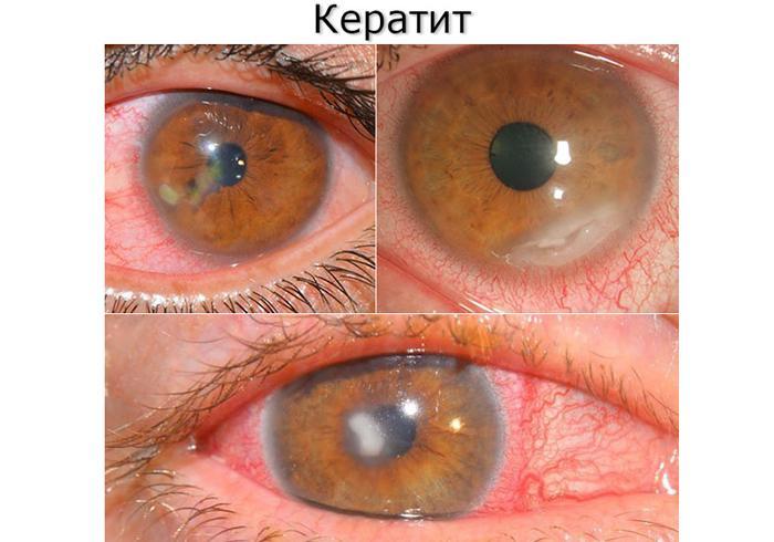 Симптомы кератита