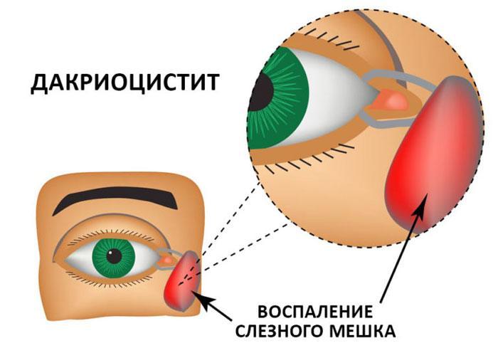 Воспаление слезного мешка при дакриоцистите