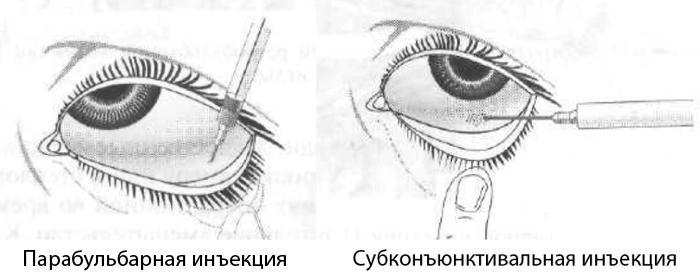 Виды инъекций в глаз