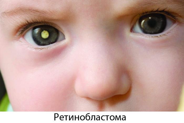 Ретинобластома у ребёнка