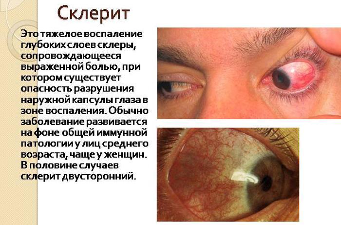 Симптомы склерита