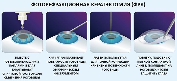 Как проводится фоторефракционная кератэктомия