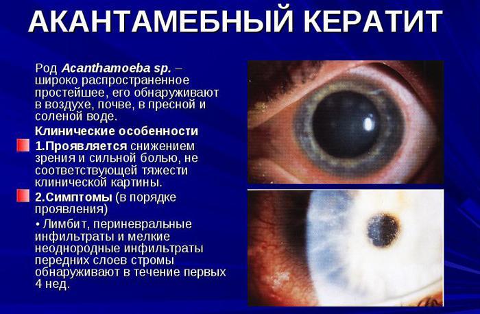 Симптомы акантамёбного кератита