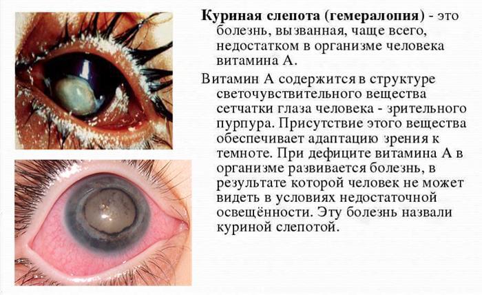 Куриная слепота симптомы