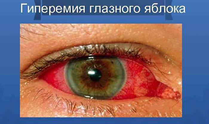 Гиперемия глазного яблока