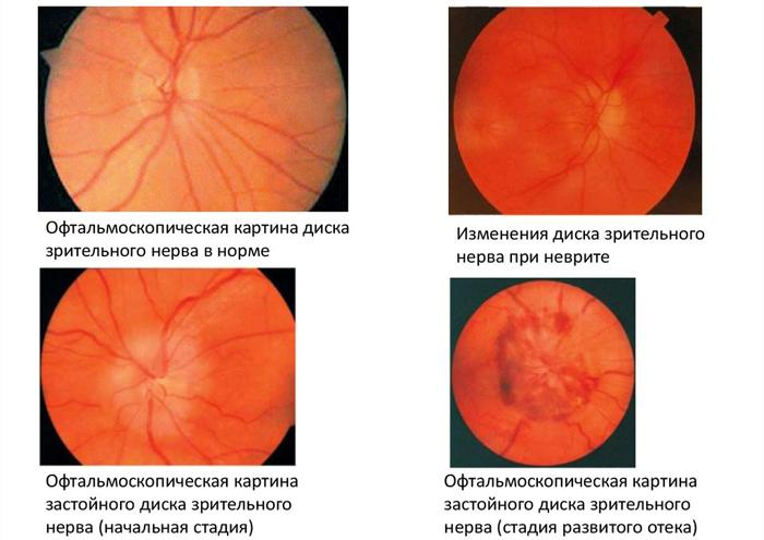 Стадии застойного диска зрительного нерва