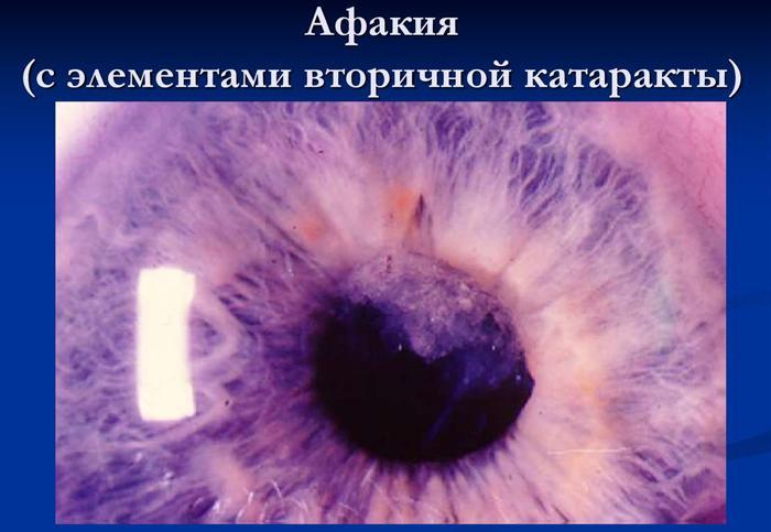 Афакия глаз с элементами вторичной катаракты