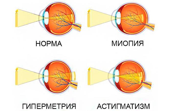 Близорукость, дальнозоркость и астигматизм