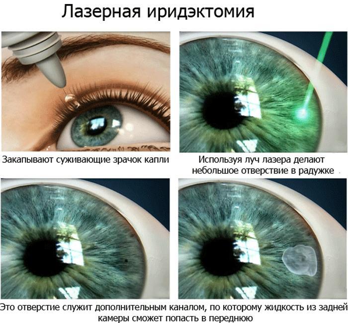 Как проводится лазерная иридэктомия