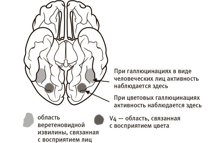 синдром Шарля Бонне