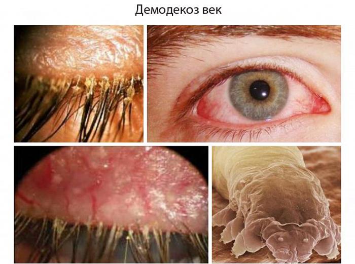 Демодекоз век симптомы