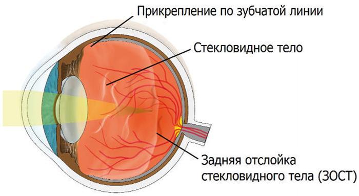 Отслойка стекловидного тела глаза