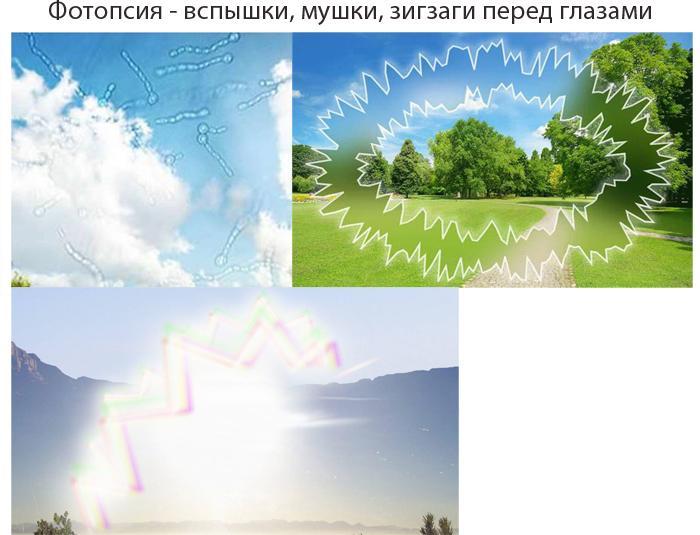Что такое фотопсия
