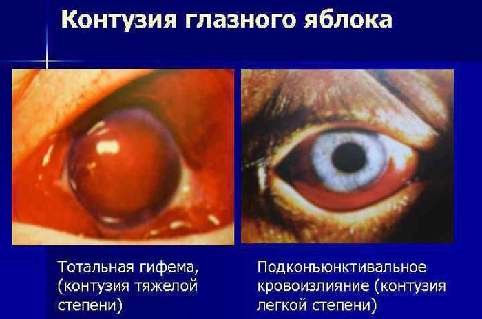 Тотальная гифема при контузии глазного яблока