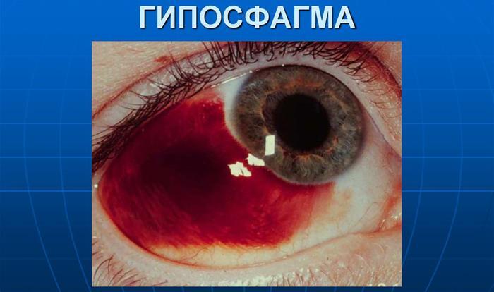 Что такое гипосфагма