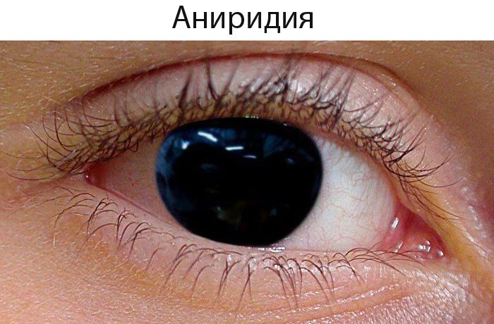 Аниридия (отсутствие радужной оболочки) глаза