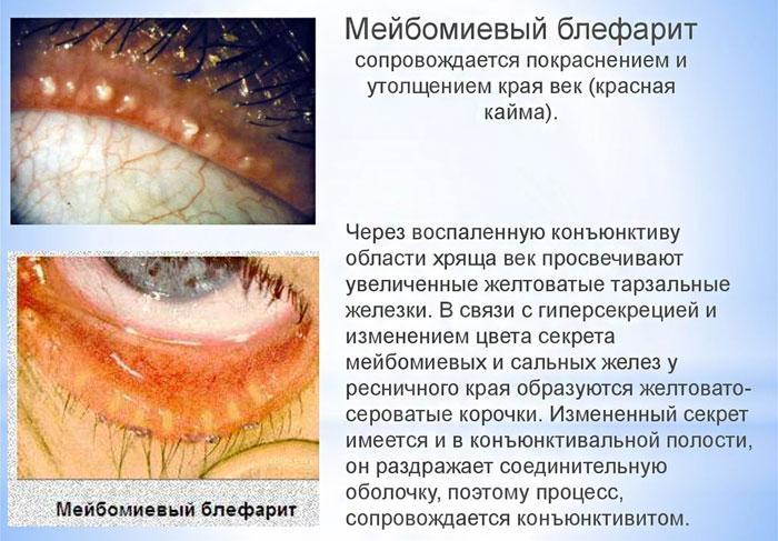 Мейбомиевый блефарит симптомы