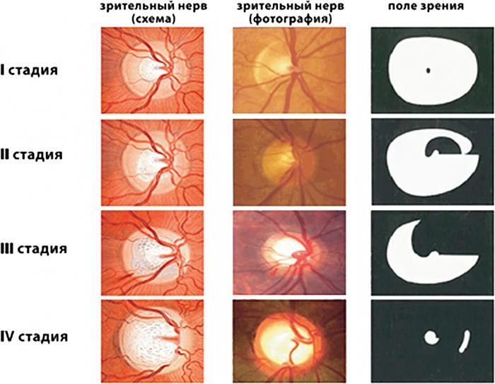 Стадии развития глаукомы