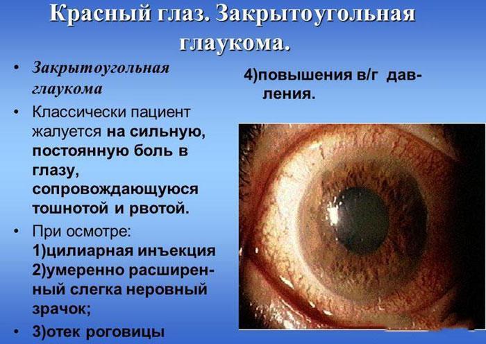 Симптомы закрытоугольной глаукомы