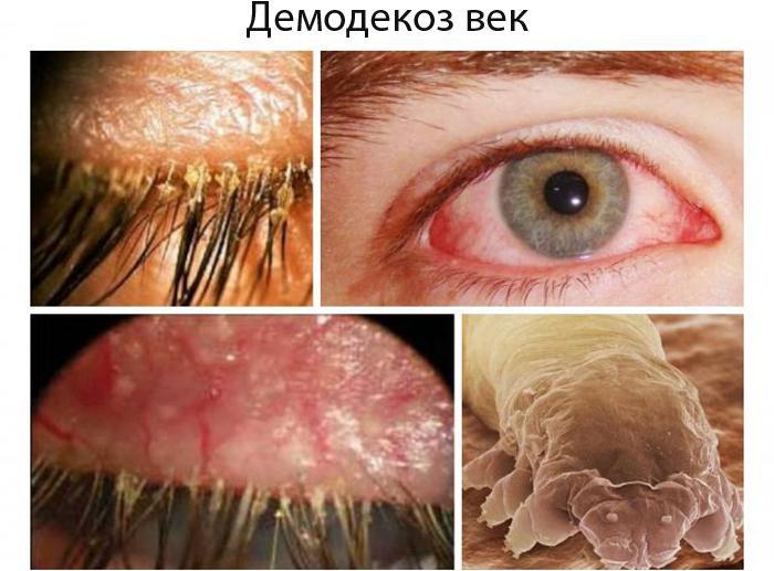 Симптомы демодекоза век