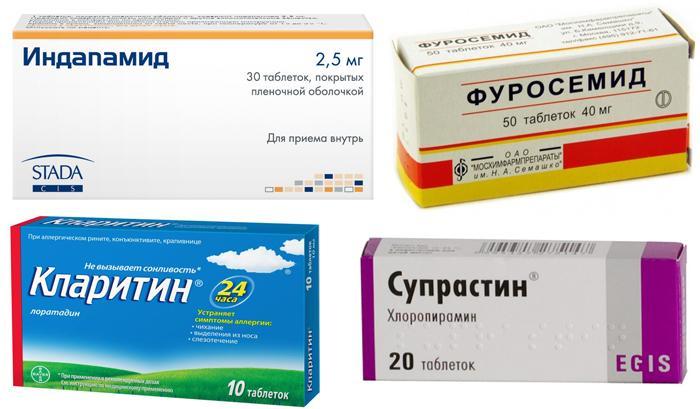 Лечение отеков глаз медикаментами